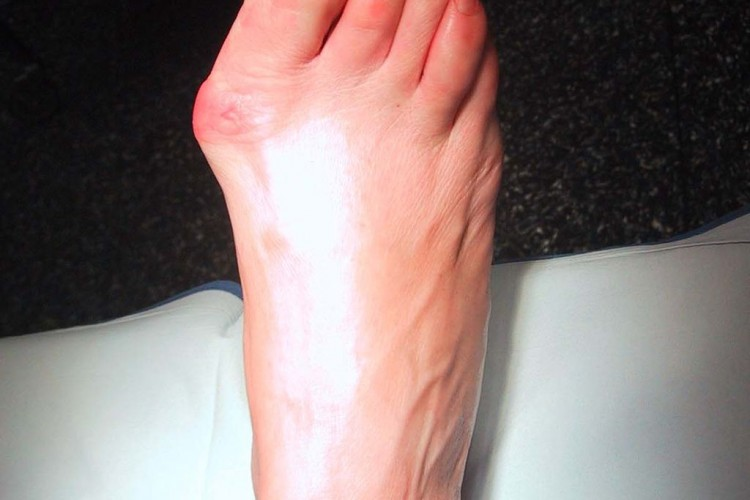 Do You Suffer From Bunions?