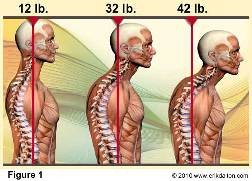 Is Your Poor Head Posture Killing You?